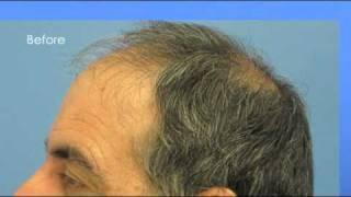 Hair Transplant Video - Dr Wong - 5496 Grafts - 1 Session