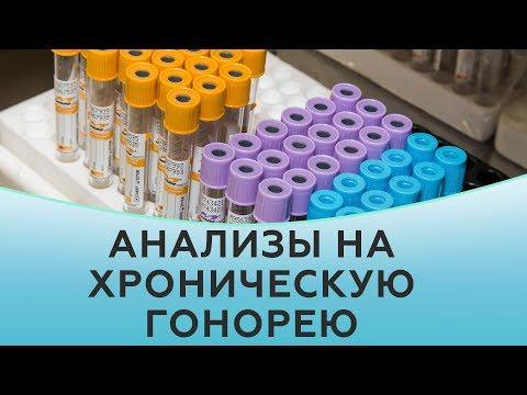 Как берут анализы на гонорею. Анализы на хроническую гонорею