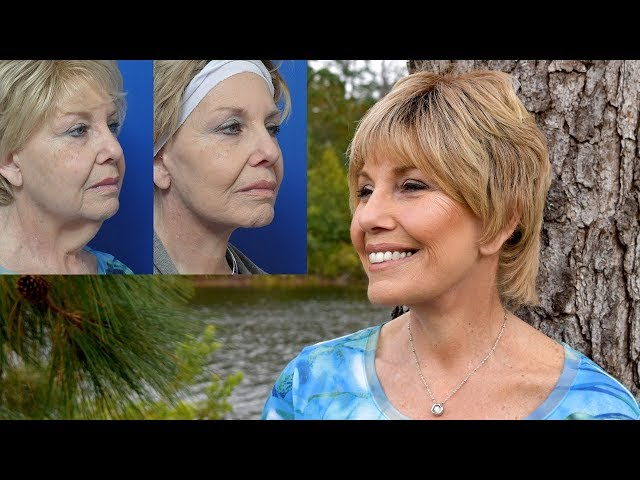Donna's Neck Lift Transformation Story