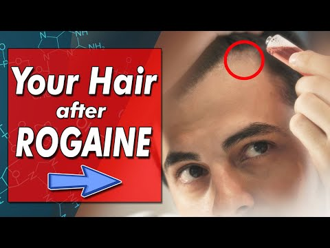 the-truth-about-stopping-minoxidil-|-rogaine-side-effects