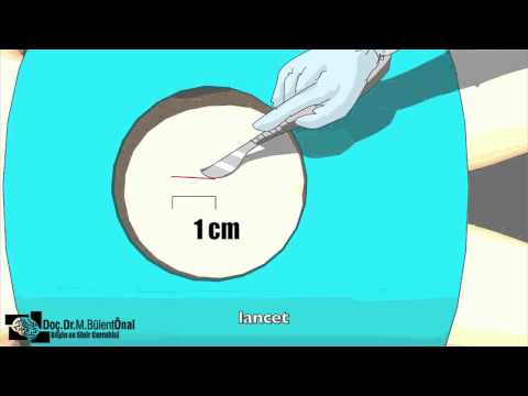 lomber disc herniation operation animation video