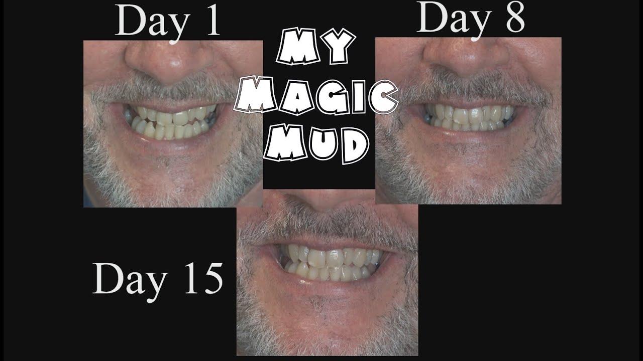 Magic mud facial