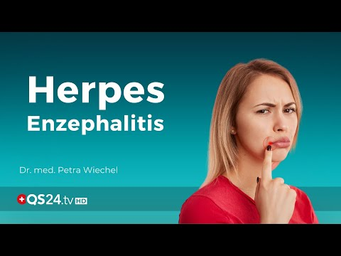 Herpes Enzephalitis: Ursache und Folgen