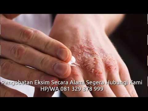 bagaimana-cara-menyembuhkan-penyakit-eksim-#caramengobatieksim-#obateksim-#obatdermatitis