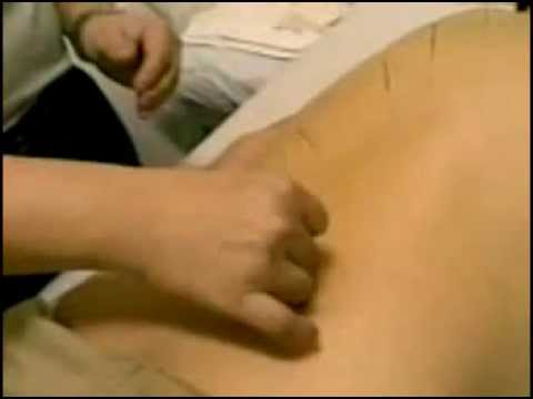 Acupuncture on a Post Stroke Patient