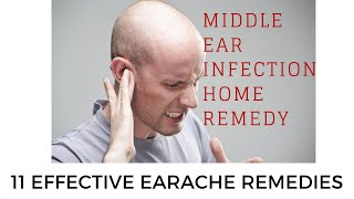 middle ear infection home remedy | 11 Effective Earache Remedies