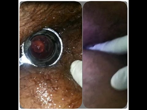PROCTOSCOPY AND DRE [DIGITAL RECTAL EXAMINATION] from YouTube · Duration:  2 minutes 5 seconds