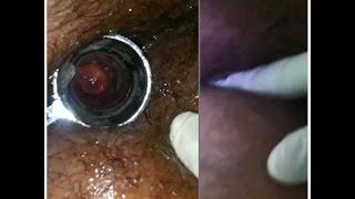 proctoscopy and dre digital rectal examination