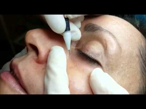 Removal of Cholesterol Deposits under the eye AC