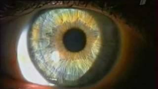 Смотреть видео образ жизни при глаукоме