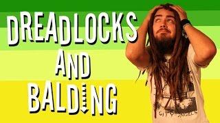 DREADLOCKS AND BALDING