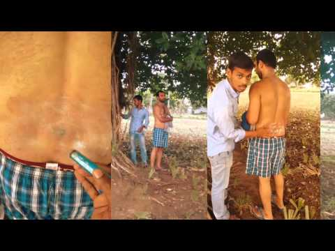 natural-trees-milk-treatment-for-all-skin-problems-@-nadipathy---kakinada