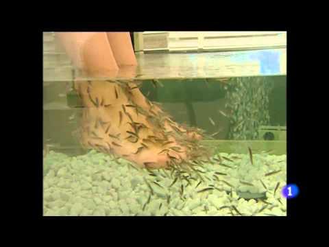 peces que muerden los pies, precauciones