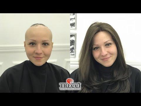 Come Risolvere Alopecia, Parrucca Capelli Naturali