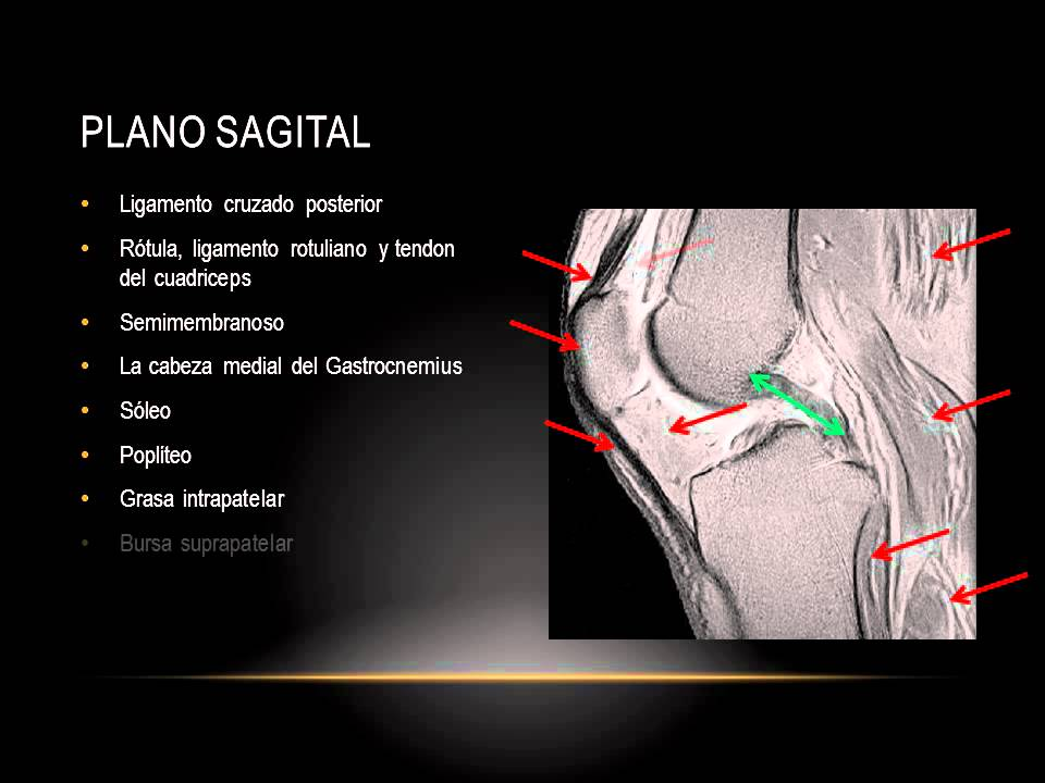 Dorable Anatomía De La Rodilla Bursa Cresta - Imágenes de Anatomía ...