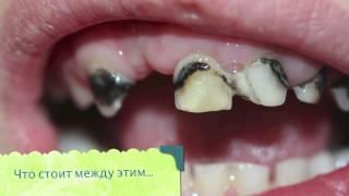 Детская стоматология. Лектор: Гецман Антонина.(Создание условий для оказания качественной стоматологической помощи. 15-16 марта 2013 года с 10:00 до 18:00 Регистр..., 2013-01-28T18:42:17.000Z)