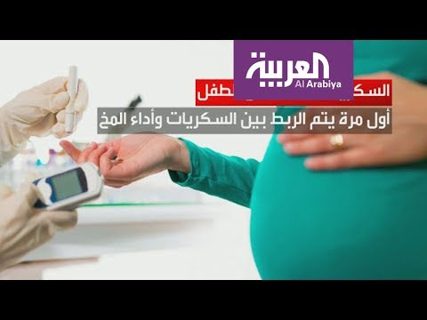 صباح_العربية: هذا ما تفعله الصودا في الرأس  - نشر قبل 1 ساعة