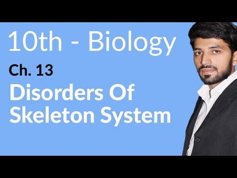 Disorders of Skeletal System - Biology Chapter 13 Support and Movement - 10th Class