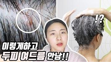 SUB)[효과최고...]두피샵에서 배워온 지성 각질 두피여드름 샴푸법