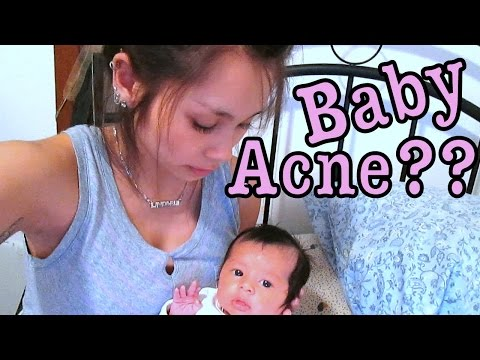 Baby Acne?? - LaustinTiime Vlog