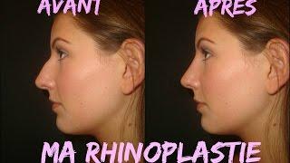 Ma rhinoplastie 👃🏻