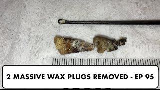 2 MASSIVE PLUGS OF EAR WAX REMOVED - EP 95