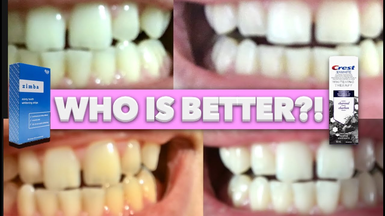 Zimba Teeth Whitening Strips Vs 3d Crest Teeth Whitening