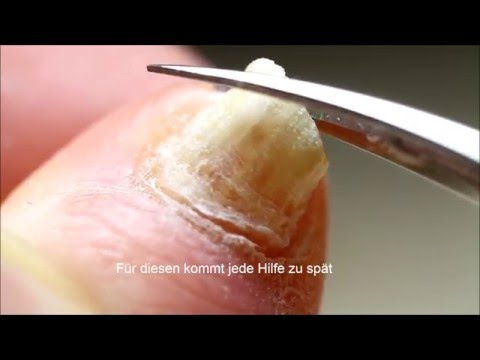 Seltsamer Fleck auf der Hautиз YouTube · Длительность: 52 с