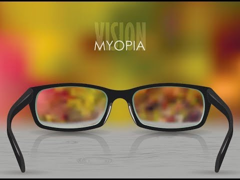 What Is Myopia or Minus Power? How it  is corrected? (Hindi)