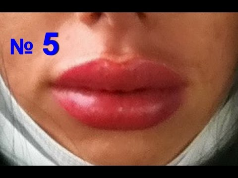 Опухло нижнее веко - Вопрос офтальмологу - 03 Онлайн