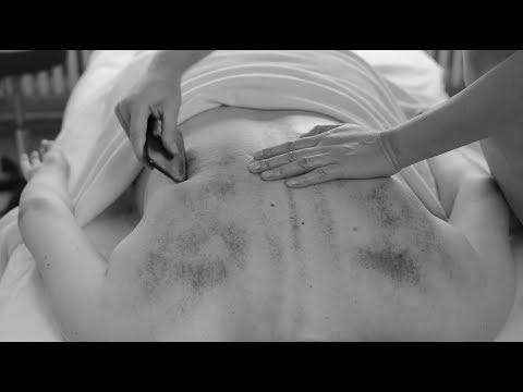 Gua Sha, Treatment by Chinese Healer, ASMR no talking