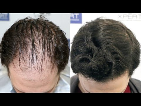 fue-hair-transplant-(3057-grafts-norwood-v-dpa)-by-dr-juan-couto---fuexpert-clinic,-madrid,-spain