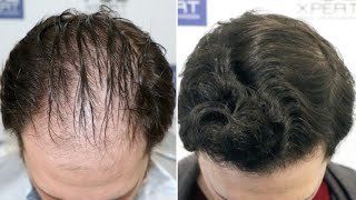 FUE Hair Transplant (3057 Grafts Norwood V DPA) By Dr Juan Couto - FUEXPERT CLINIC, Madrid, Spain