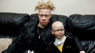 Model With Albinism Inspires Kids With Condition | BORN DIFFERENT