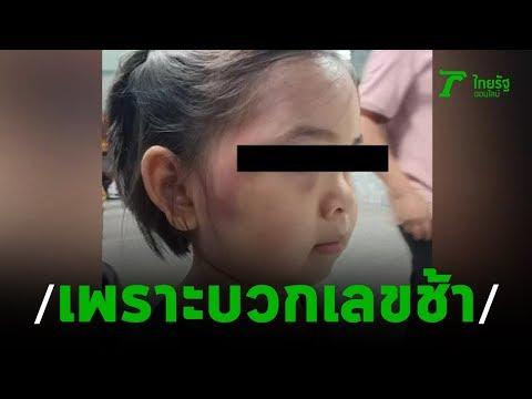 ครูใช้ไม้ฟาดหัวเด็ก 7 ขวบจนเลือดคั่ง | 18-08-62 | ข่าวเช้าไทยรัฐ เสาร์-อาทิตย์ ▶3:08
