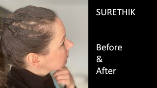 Surethik Fibers - Before and After