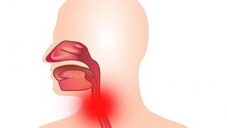 Как лечится ларингофарингеальный рефлюкс