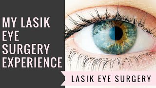 My LASIK Eye Surgery Experience!!! | Before, After, & During