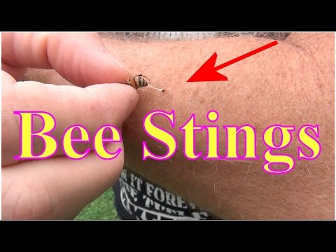 Bee Stings! Ouch, Stung By A Honey Bee. Now What?