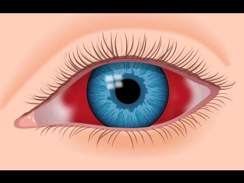 What Is An Eye Hemorrhage