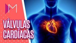 É cardíaca inflamatória da que válvula o doença