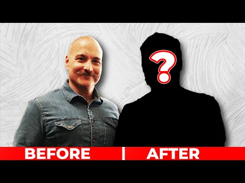 from-shaving-head-for-25-years-to-incredible-hair-system!!