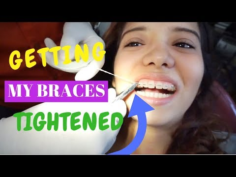 GETTING BRACES TIGHTENED & HOW I FIXED MY BROKEN WIRE