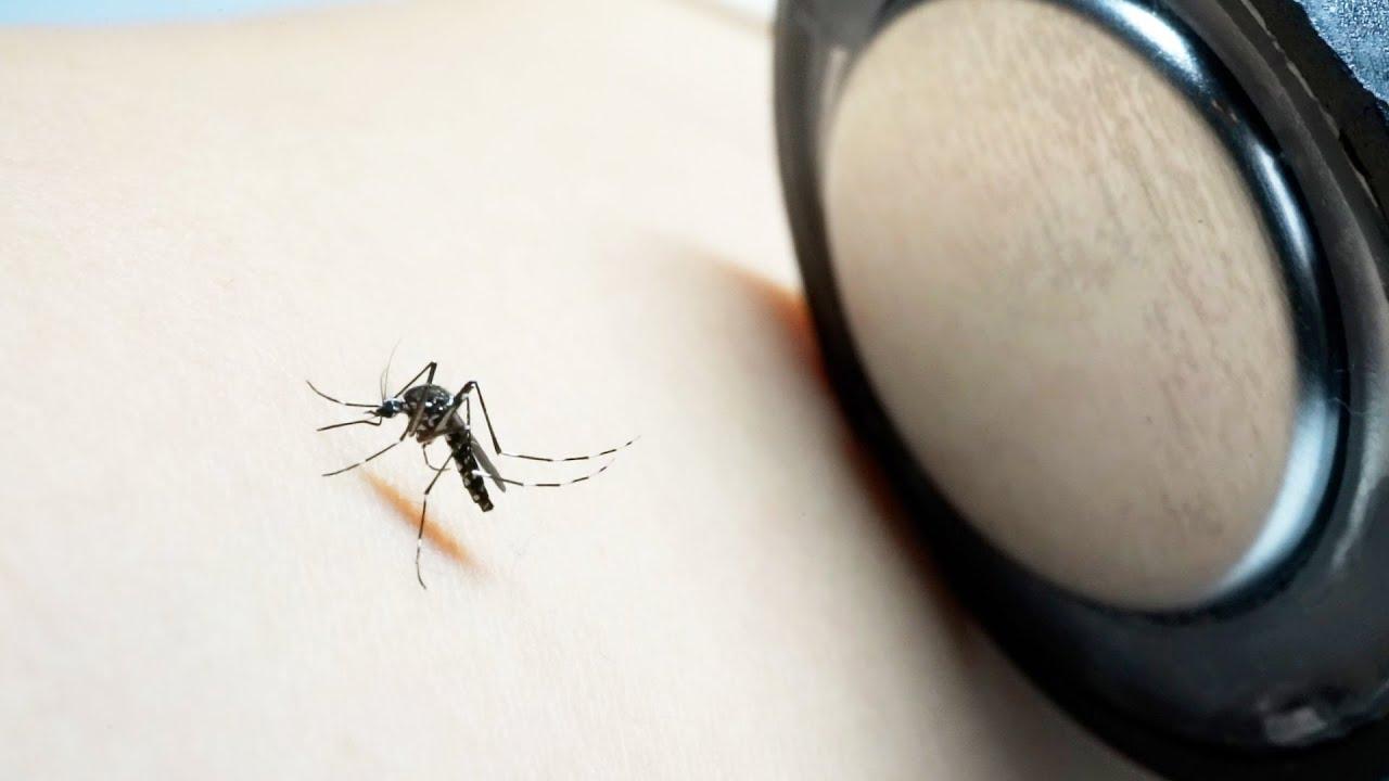 蚊に刺された皮膚に高熱の鉄を押し付けると…衝撃の結果に
