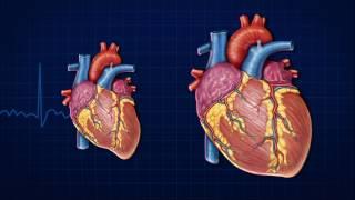 De cardíaca doença causa verdadeira