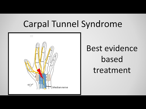 Carpal Tunnel Tune-Up - Mayo Clinic.