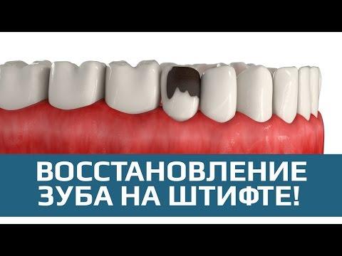 Восстановление зуба. Наращивание зуба на штифте