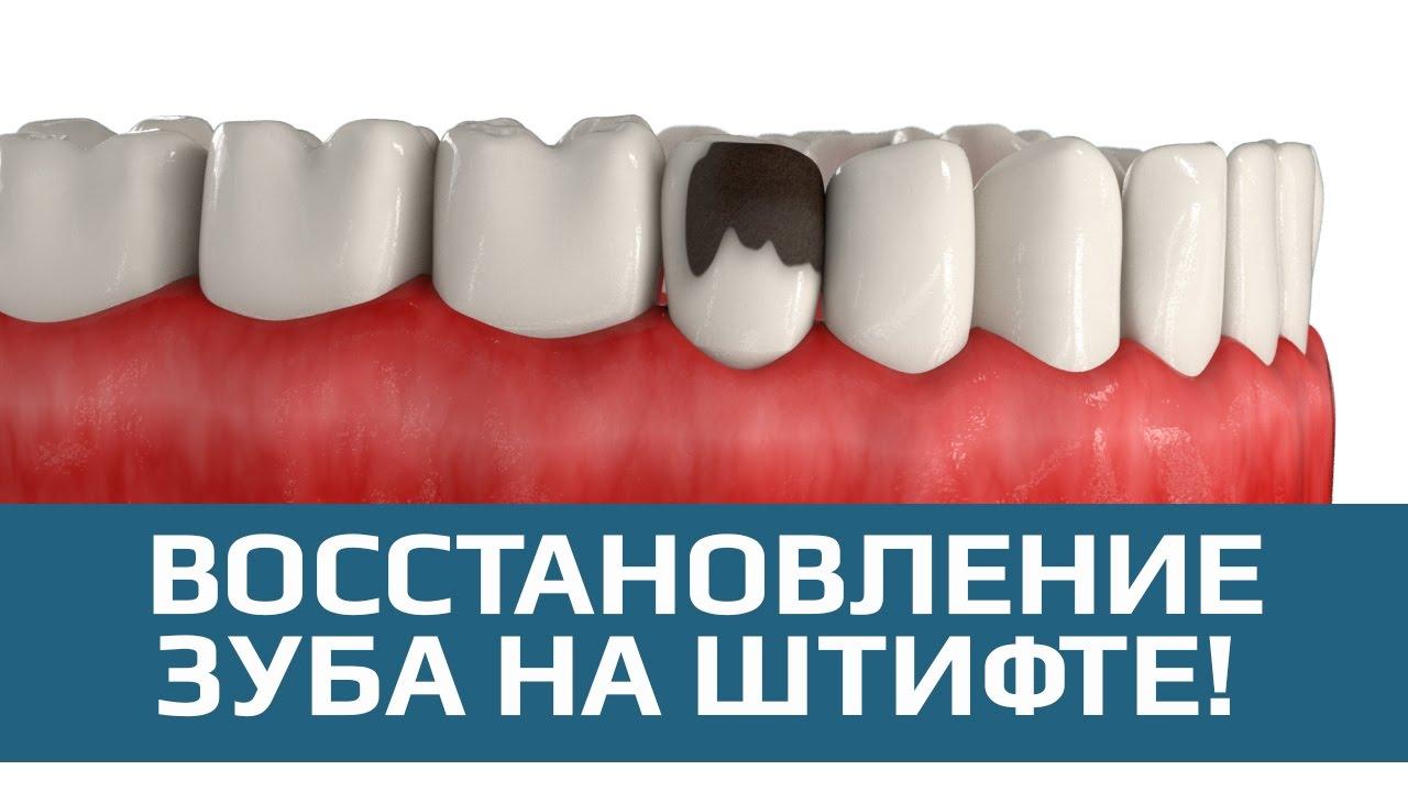 восстановление зуба вкладками виниром полукоронкой