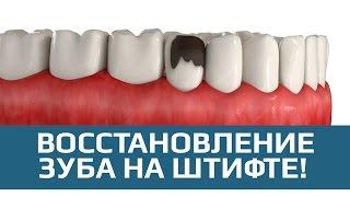 видео Штифты для восстановления сильно поврежденных зубов