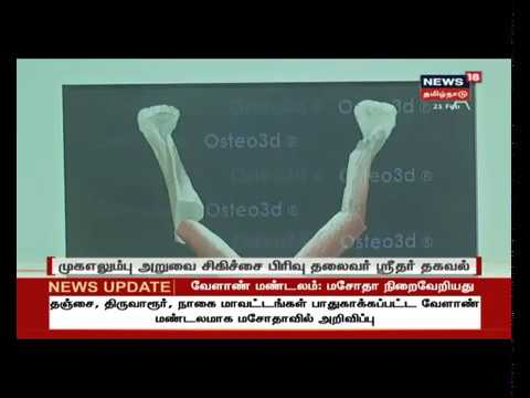 Virtual Computerized Planning for Ameloblastoma Surgery - Coverage on News18 Tamil